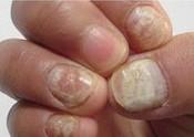 医生详解 灰指甲病因