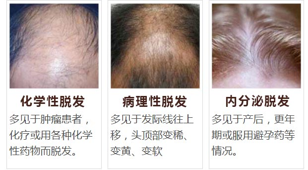 脱发有6种类型(图片)