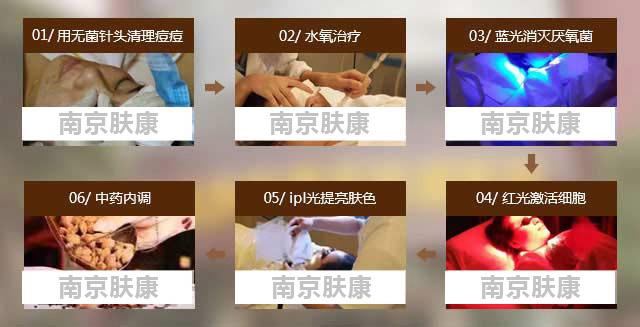 青春痘有哪些类型(图片)