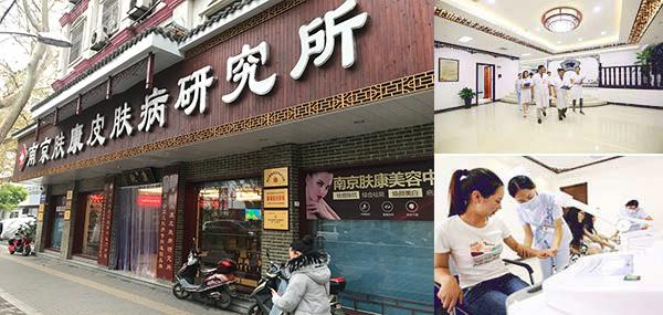 南京治疗斑秃的专科医院