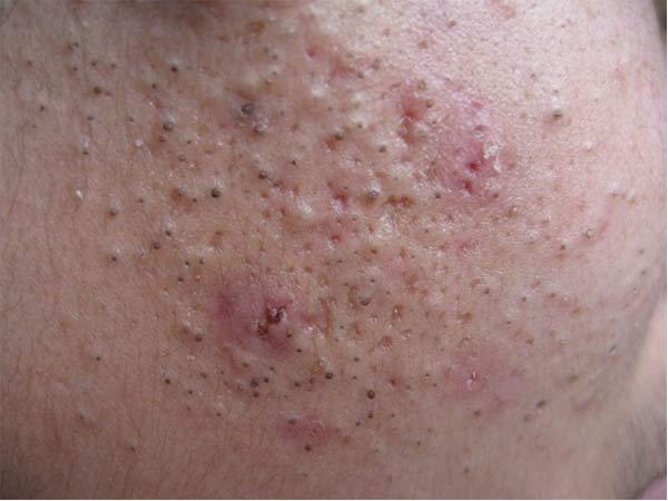 面部青春痘的临床表现有什么