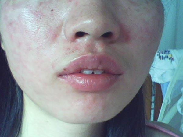 皮肤过敏常见有什么类型